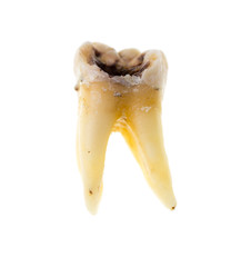 Old torn tooth on a white background
