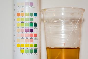 Labor, Blut abnehmen Urin Untersuchung