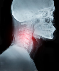 X-ray image film detail of neck and red zone pain.