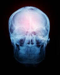 Film x-ray of human skull.