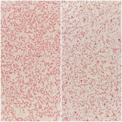 Two smear patterns of human blood cultured Gram's stained with gram negative bacilli bacteria under 100X light microscope (Selective focus).