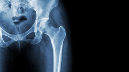 X-ray normal pelvis and hip joint . Blank area at right side