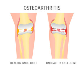 Cartoon Osteoarthritis Healthy and Unhealthy Knee. Vector