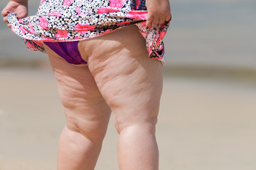 .Lively old fat woman in swimwear on sunny beach..Cellulite thigh will be burned by tropical sun ,healthy holiday concept..