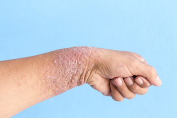 Hand dermatitis, Eczema on hand.