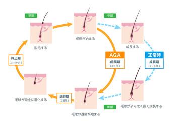 AGA 毛周期 ベクター素材
