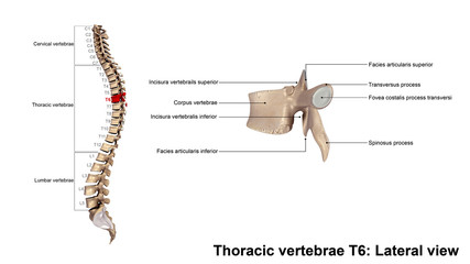 Thoracic vertebrae T6_Lateral view