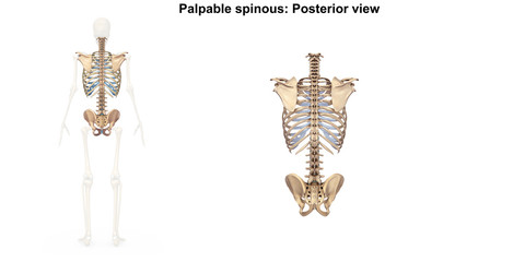 Palpable spinous_Posterior view
