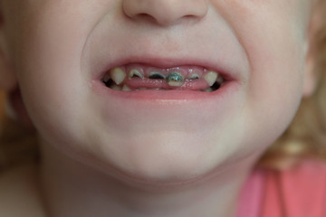 Not healthy baby's front teeth with black caries