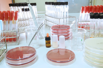 blood testing in laboratory