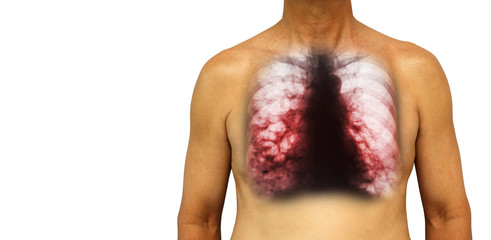 Bronchiectasis .  Human chest with x-ray chest show multiple lung bleb and cyst due to chronic infection . Isolated background . Blank area at Left side