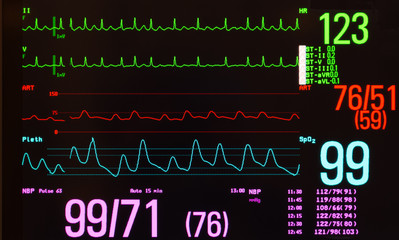 Monitor with a black background showing atrial flutter on the green ECG lines, arterial blood pressure on the red line, noninvasive blood pressure in purple and oxygen saturation on the blue line.