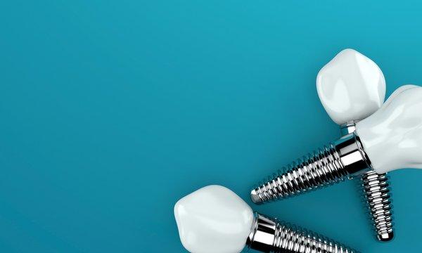 Dental implants on blue background
