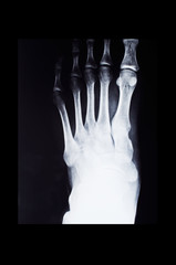 Fluorography of foot