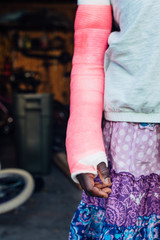 Pink cast on a black girl's broken arm
