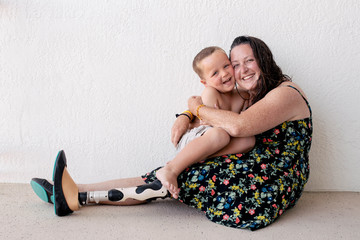 Portrait of mother with prosthetic leg embracing son at home
