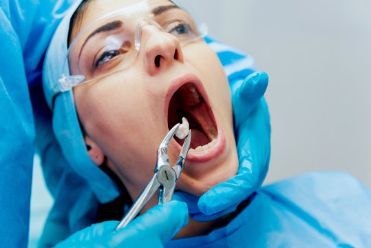 Dentist using surgical pliers to remove a decaying tooth. Modern dental clinic