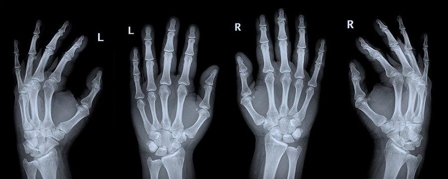 Röntgenbild Hand Hände