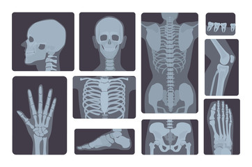 Realistic x-ray shots collection. Human body hand, leg, skull, foot, chest, teeth, spine and other.