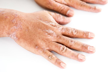 Atopic dermatitis (AD), also known as atopic eczema, is a type of inflammation of the skin (dermatitis).