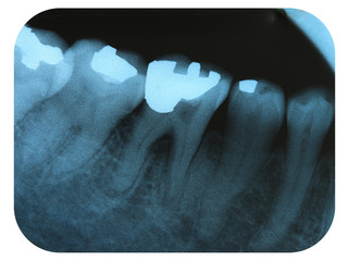 X-Ray Negative Tooth Filling Amalgam