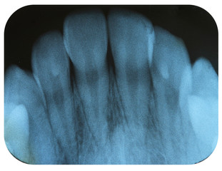 X-Ray Negative Tooth Incisors