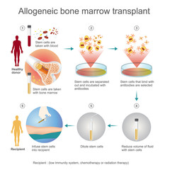 The allogeneic transplant process are donated to the person from another person, a genetically matched stem cell donor. Info graphic vector.