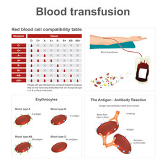Blood transfusion. There are two special blood types when it comes to blood transfusions. Info graphic vector.