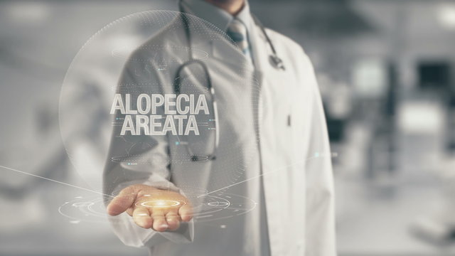 Doctor holding in hand Alopecia Areata