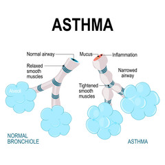 asthma. alveoli and bronchiole.