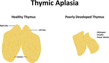 Thymic Aplasia