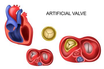 prosthetic tricuspid heart valve