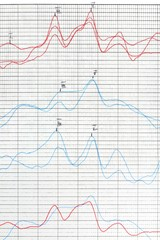 Hearing examination report. Tinnitus problem analysis.