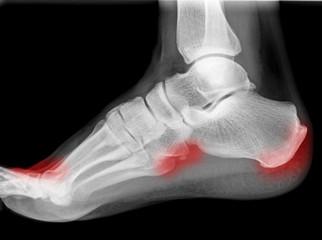 Fuß mit Arthrose