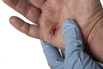 A hand with stiches being assessed