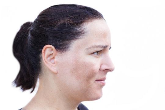Junge Frau mit Pigmentflecken auf den Wangen auf weißem Hintergrund