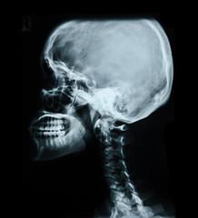 Human skull X-ray image.