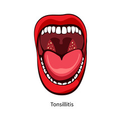 Pain in the throat. Tonsillitis. Inflammation of the tonsils. Vector illustration