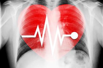 Kardiologie EKG mit Herz und Röntgenbild