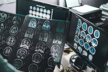 alzheimer's disease on MRI