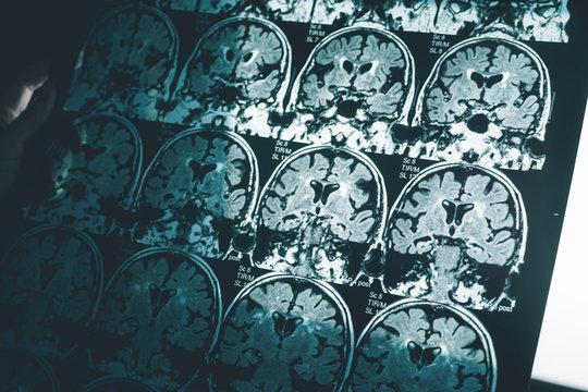 Alzheimer's disease on MRI film