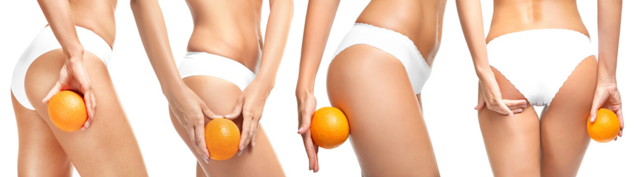 Collage of young woman with orange on white background. Cellulite problem concept