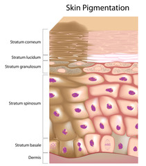 Formation of uneven skin tone
