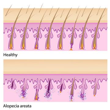 Normal hair and Alopecia areata