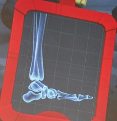 Pretend Foot X-Ray