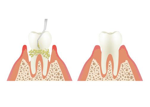 歯周病の歯石とり(スケーリング)