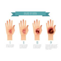 Degree of skin burns. Flat vector illustration for websites, brochures, magazines etc