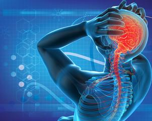 a man with a headache under x-ray. (body, human, anatomy)