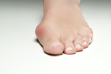 Hallux valgus, bunion in foot on white background