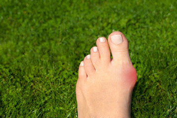 Hallux valgus, bunion in foot on grass background